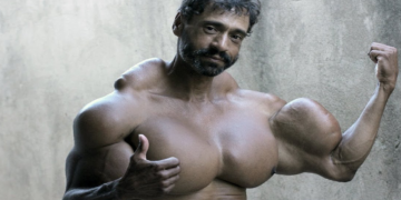 People Who Have the Oddest Muscles